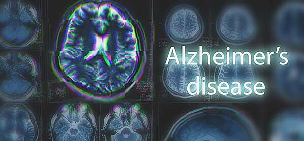 AI and Alzheimer's Disease